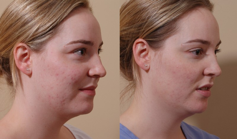Scar Laser Treatment Before and After